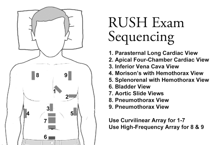 RUSH - Rapid Ultrasound for Shock and Hypotension, two anterior thoracic windows http://sinaiem.us/tutorials/rush/